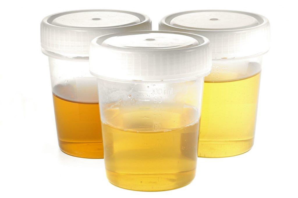 Urin Schwangerschaft Geruch